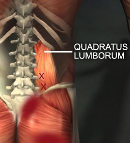 quadratus-lumborum